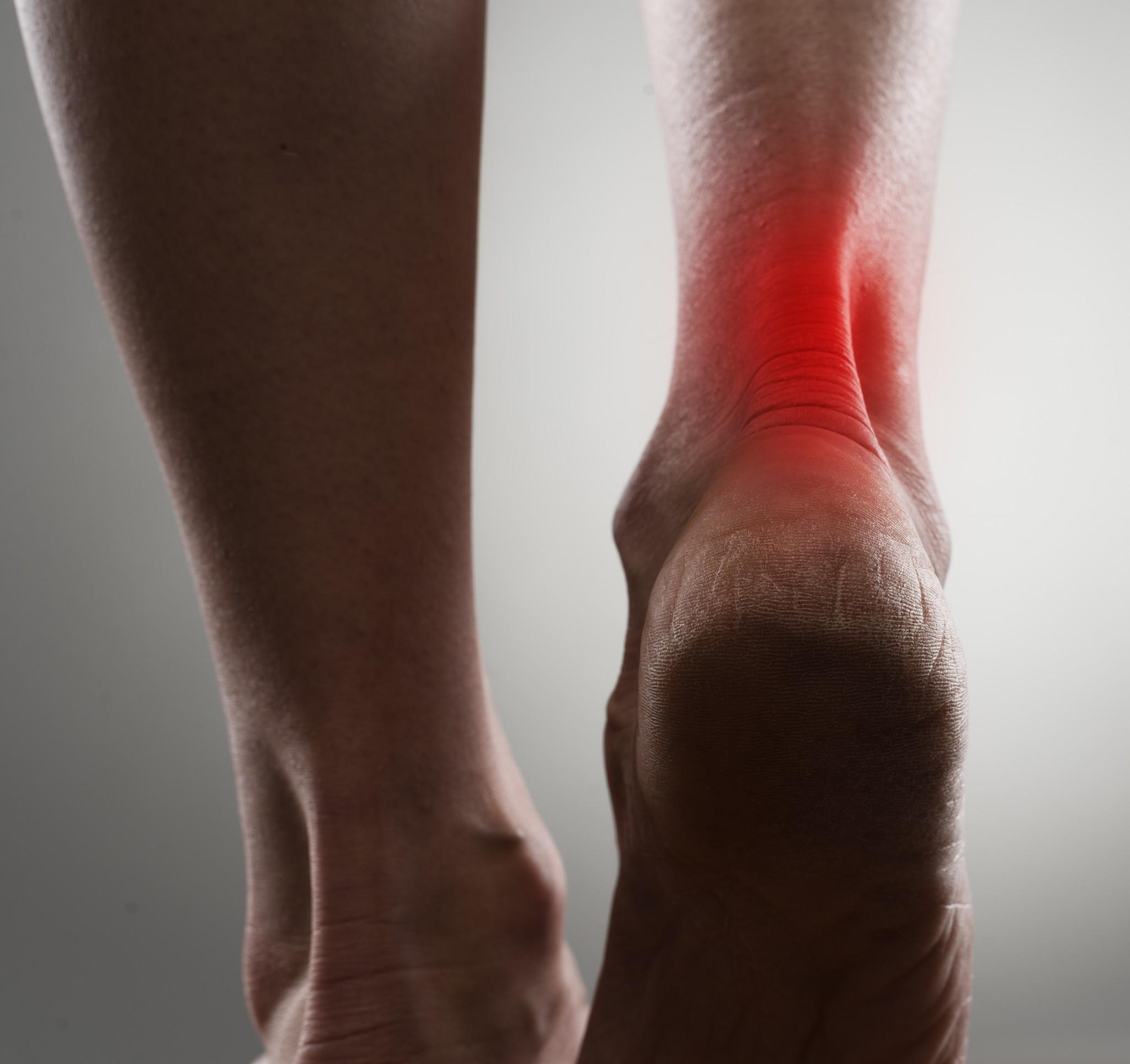 Le traitement lors d'une douleur au mollet